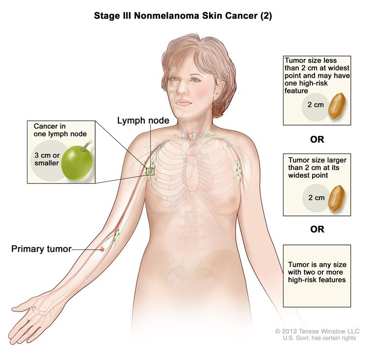 Cancerhelp stage iii nonmelanoma skin cancer 2 drawing shows a primary tumor in one ccuart Images